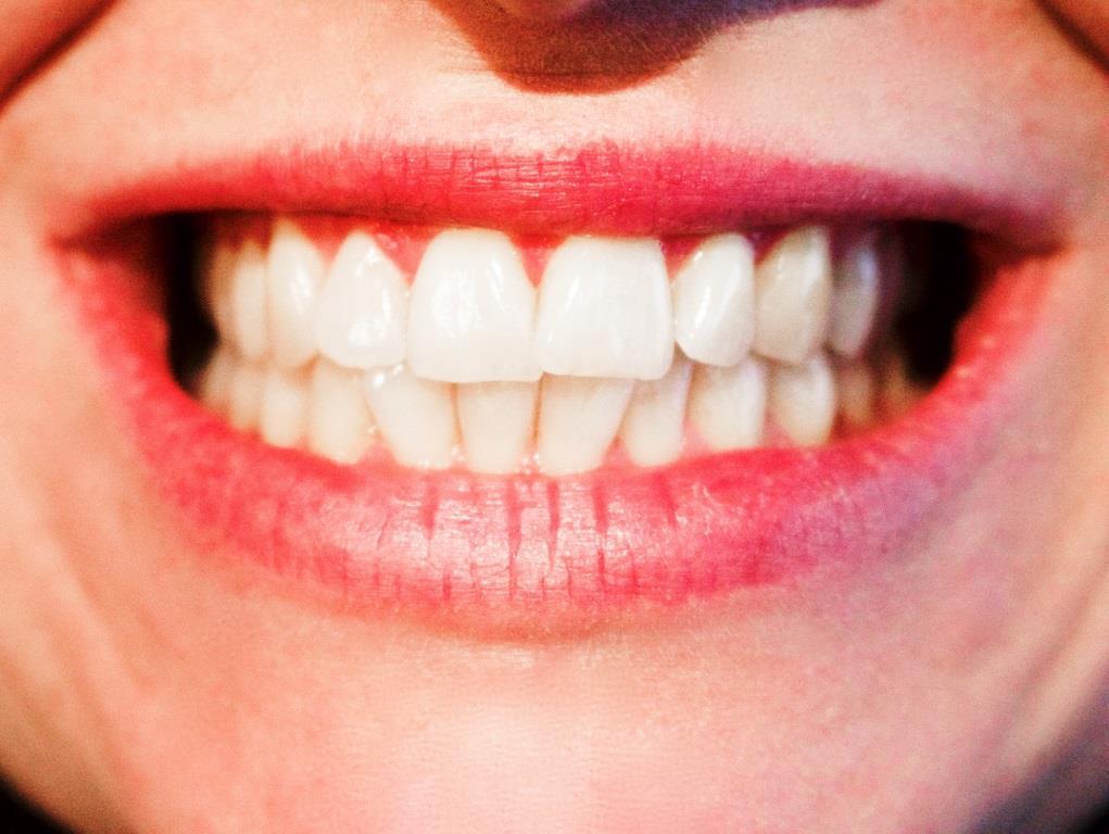 Um auf Schnappschüssen zu glänzen, empfiehlt sich ein zauberhaftes Lächeln. - copyright: pixabay.com